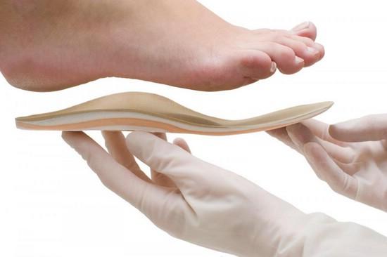 Как выбрать ортопедические стельки